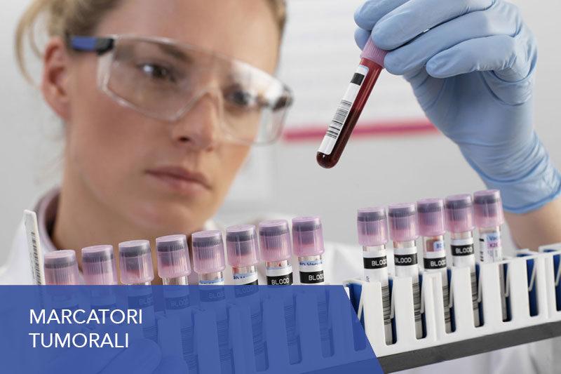 https://www.laboratoriomedalab.it/wp-content/uploads/2019/07/marcatori-tumorali-800x533.jpg